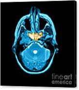Sinusitis Canvas Print