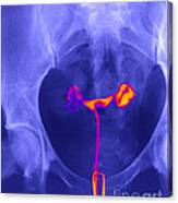 X-ray Of Ovaries Canvas Print
