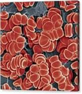 Blood Clot, Sem Canvas Print
