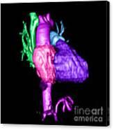 Color Enhanced 3d Cta Of Heart Canvas Print