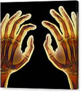 Coloured X-ray Of Healthy Human Hands Canvas Print