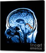 Mri Of Alcoholism Related Vermian Canvas Print