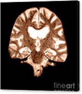 Mri Of Brain With Alzheimers Disease Canvas Print