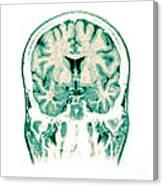 Normal Coronal Mri Of The Brain Canvas Print