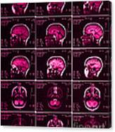 Mri Of Normal Brain Canvas Print