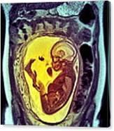 9 Month Foetus, Mri Scan Canvas Print