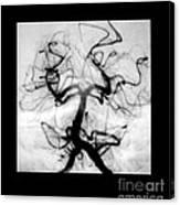 Angiogram Of Embolus In Cerebral Artery Canvas Print
