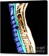 Herniated Disc In Cervical Spine Canvas Print