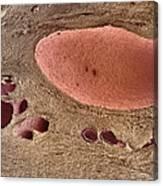 Polycystic Kidney Disease Canvas Print