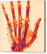 X-ray Of Gunshot In The Hand Canvas Print