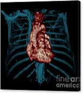 3d Ct Reconstruction Of Heart Canvas Print