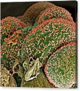 Breast Cancer Cells, Sem Canvas Print