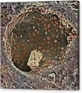 Breast Cancer, Sem Canvas Print