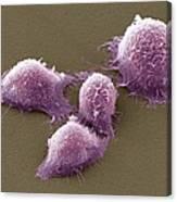 Cervical Cancer Cells, Sem Canvas Print