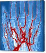 Hand Arteriogram Canvas Print