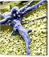 Malignant Cancer Cell Canvas Print