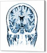Normal Coronal Mri Of The Brain Canvas Print