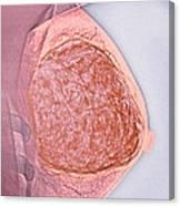 Breast Tumour, X-ray Canvas Print