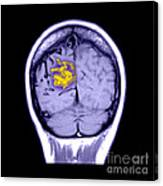 Mri Of Arterial Venous Malformation Canvas Print