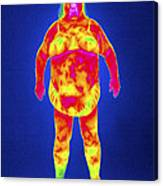 Obese Woman, Thermogram Canvas Print