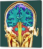 Healthy Brain, Mri Scan Canvas Print
