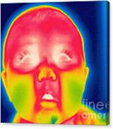 A Thermogram Of A 5 Month Old Baby Canvas Print
