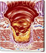 Artwork Showing Close-up Of Gastric Ulcer Canvas Print