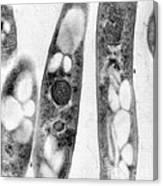Bacillus Anthracis, Tem Canvas Print
