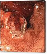 Bleeding Stomach Ulcer With Cancer Canvas Print