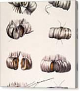 Bowel Surgery Canvas Print