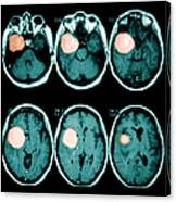 Brain Tumor Canvas Print