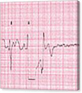 Cardioversion, 1 Of 2 Canvas Print