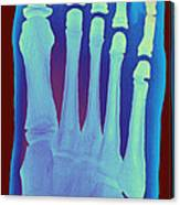 Child's Foot, X-ray Canvas Print