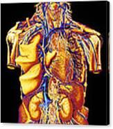 Colour Artwork Of Abdominal & Thoracic Nerves Canvas Print