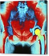 Coloured X-ray Of An Artificial Hip Joint Canvas Print