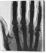 Early X-ray, 1897 Canvas Print
