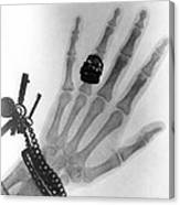 Early X-ray Photograph Of A Hand Taken In 1896 Canvas Print
