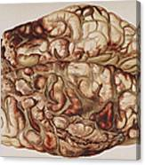 Encircling Gunshot-wound In Brain, 1898 Canvas Print