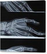 Hand X-ray Canvas Print