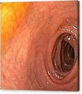 Healthy Duodenum Canvas Print