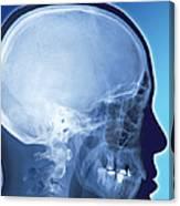 Healthy Skull, Coloured X-ray Canvas Print