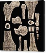 Inner Structure Of Bones Canvas Print