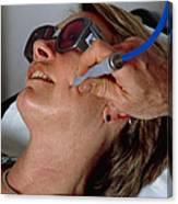 Laser Skin Treatment Canvas Print