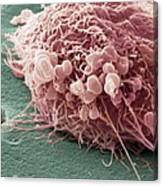 Migrating Breast Cancer Cell, Sem Canvas Print