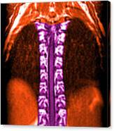 Mri Of Normal Thoracic Spinal Cord Canvas Print