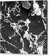 Mycoplasma Pneumoniae Sem Canvas Print