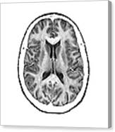 Normal Cross Sectional Mri Of The Brain Canvas Print