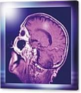 Normal Head And Brain, Mri Scan Canvas Print