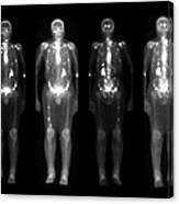 Nuclear Medicine Bone Scan Canvas Print