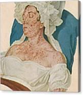 Scarlet Fever Canvas Print